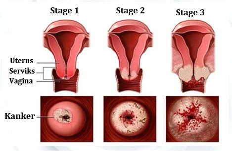 Obat Penyakit Kanker Mulut Rahim
